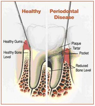 Kennesaw Periodontal Disease Treatment