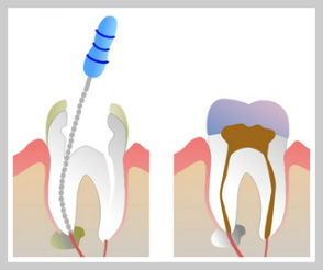 Kennesaw Root Canals