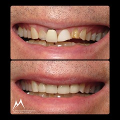 crown case before and after photo of a patiens smile