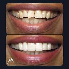 veener case before and after photo of a patiens smile