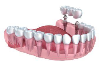 Implants and Bridges Model